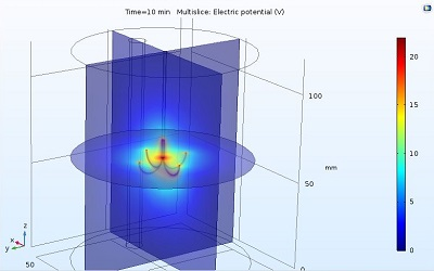 مدلسازی تخریب تومور کبدی در نرم افزار COMSOL
