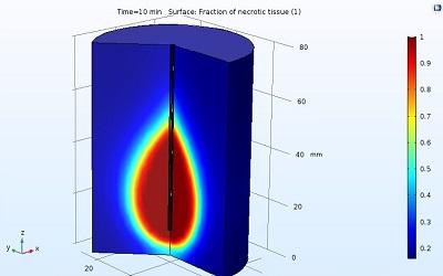 مدلسازی گرمایش مایکروویو یک تومور سرطانی در نرم افزار COMSOL